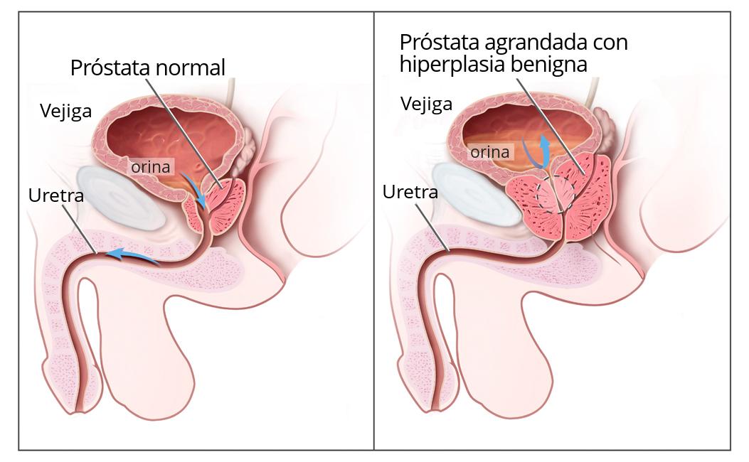 examen prostata